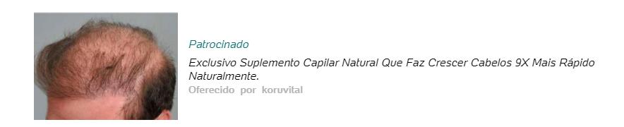 """Anúncio com um clickbait na chamada com os dizeres """"Exclusivo suplemento capilar natural faz o cabelo crescer 9x mais rápido naturalmente"""
